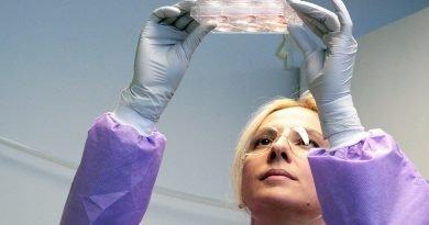 Studie zeigt große molekulare Unterschiede zwischen Stammzellen wachsen auf verschiedenen Biomaterialien