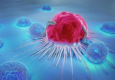 Krebs: Studie zeigt, auf welche Ernährung besser verzichtet werden sollte