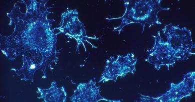Infrarot-chemical imaging-Technologie verspricht die neue Präzision der Diagnose Krebs