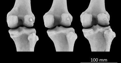 Region, Alter und Geschlecht entscheiden, wer den arthritis-linked 'fabella' Knie-Knochen